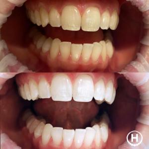 hampaiden valkaisu tampere hampaiden laservalkaisu tampere