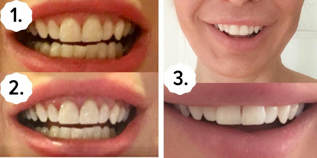 Hampaiden valkaisu - ennen ja jälkeen