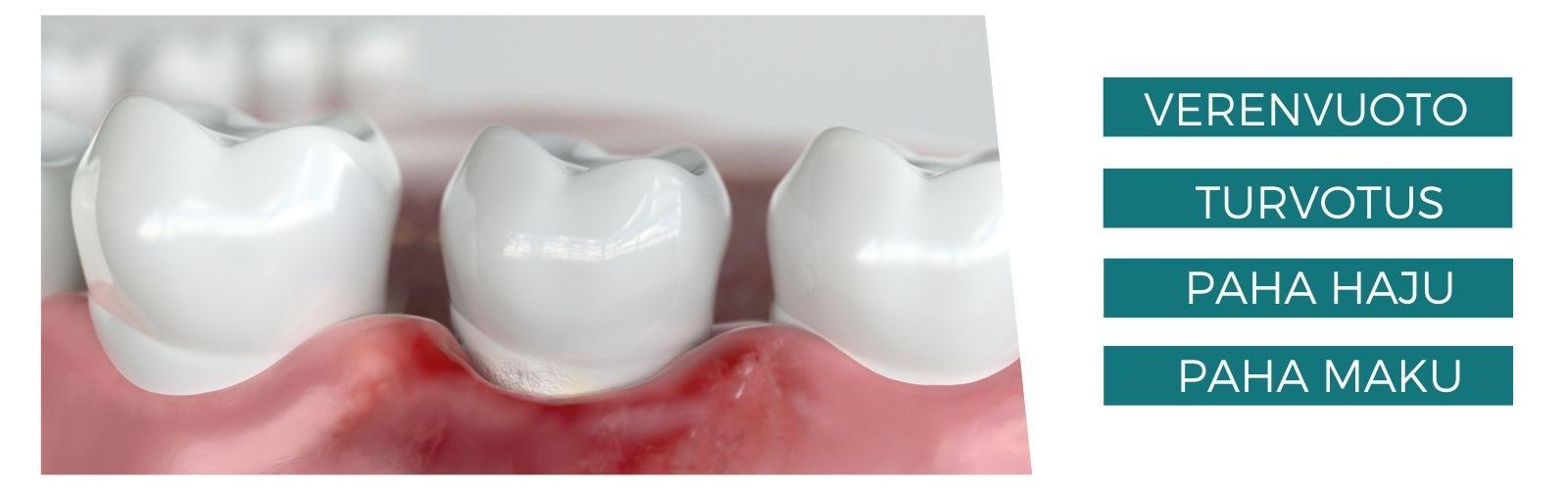IENTULEHDUS oireet parodontiitti