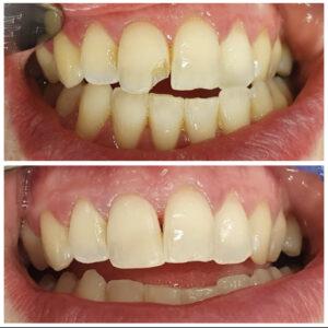 Lohjennut hammas ennen korjausta ja korjauksen jälkeen
